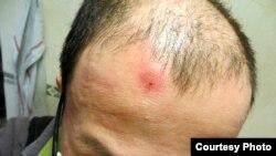 胡佳被打傷的頭部 (胡佳提供)