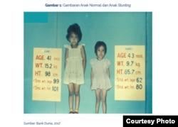 Gambaran Anak Normal dan Anak Stunting, Foto cropping dari Buku 100 Kabupaten/Kota Prioritas untuk Intervensi Anak Kerdil (Stunting) VOLUME 3 oleh TNP2K. (Foto: VOA/Yoanes Litha)