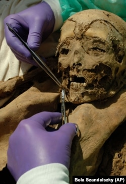 Hungarian mummies are helping scientists understand genetic mutations of colon cancer.