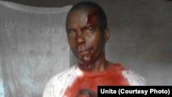 Membro da Unita ferido nos confrontos