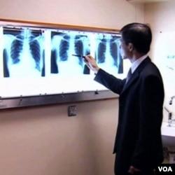 Test daha: Novi način dijagnosticiranja raka pluća