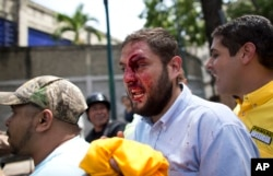 Venezuelan opposition lawmaker Juan Requesens, center, is accompanied by colleagues after being hit in the forehead by alleged government supporters during a protest in Caracas, April 3, 2017.