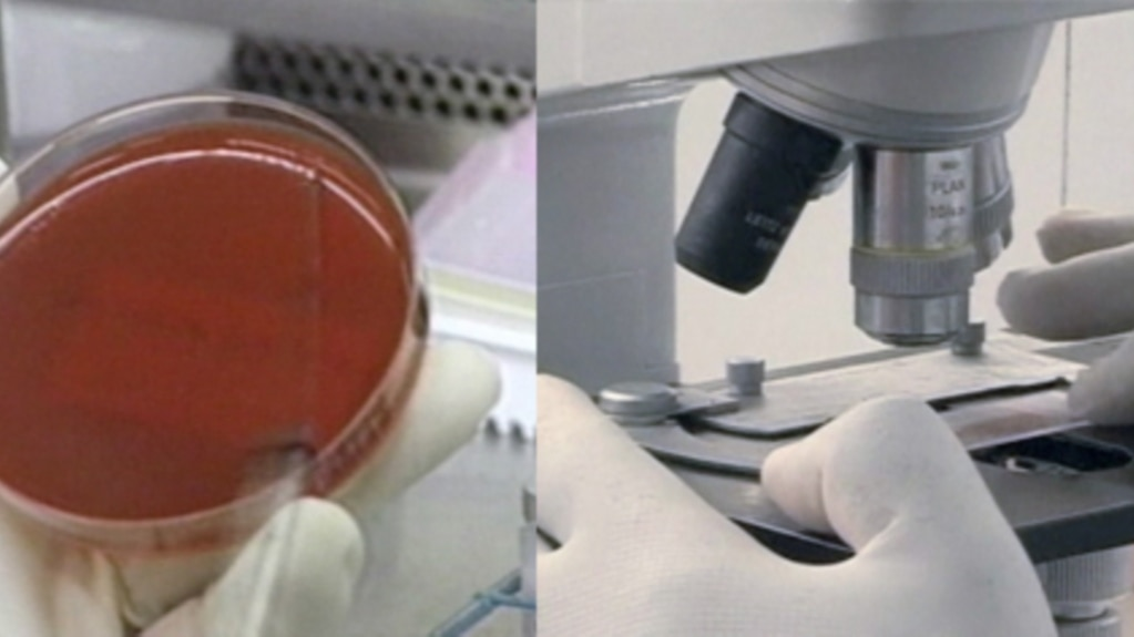 a petri dish and microscope slide used in the sputum test which takes longer but