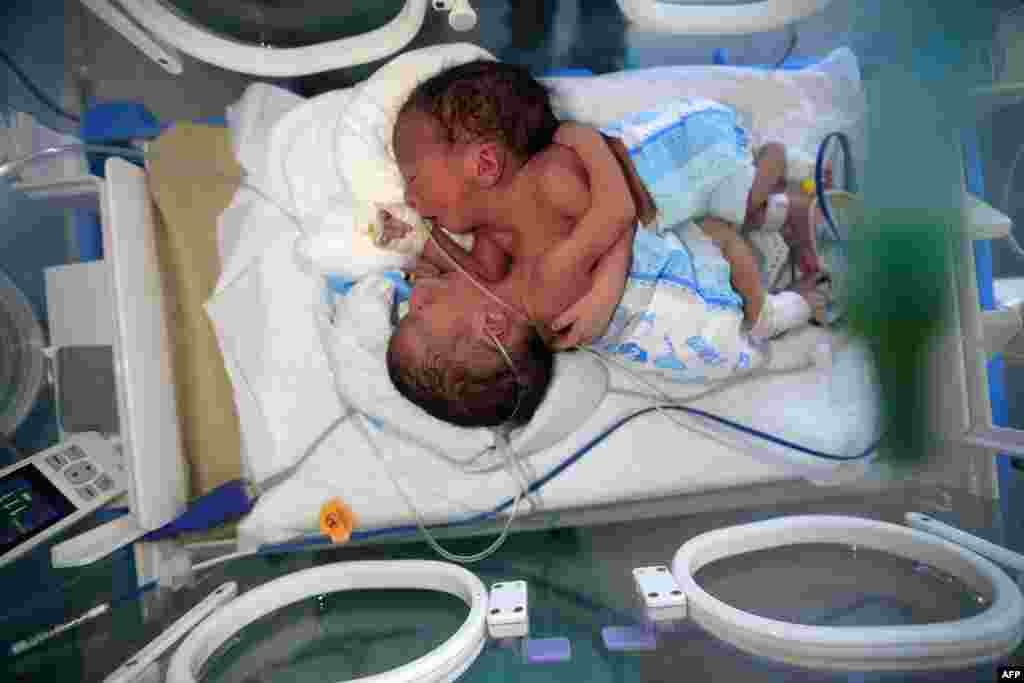 Newborn conjoined twins lie in an incubator at the child intensive care unit of al-Sabeen hospital in Yemen's capital Sanaa. The boys, born in war-ravaged Yemen, are in critical condition and in need of treatment abroad, according to the hospital.