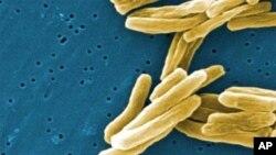 Mfano wa vijidudu vya kifua kikuu-TB, ambavyo husambaa haraka kwa njia ya kukohoa