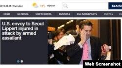 Đại sứ Mỹ tại Nam Triều Tiên Mark Lippert bị thương trong vụ tấn công bởi một kẻ có vũ trang ở Seoul (Ảnh chụp từ trang web hãng tin Yonhap).