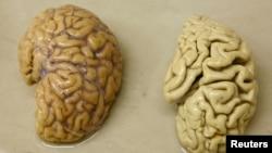 Một bán cầu não khỏe mạnh (trái) và một bán cầu não của một người bị bệnh Alzheimer.