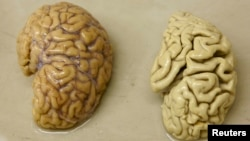 FILE - One hemisphere of a healthy brain (L) is pictured next to one hemisphere of a brain of a person suffering from Alzheimer disease.