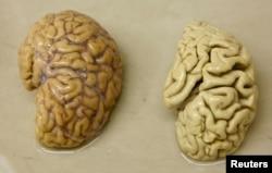 One hemisphere of a healthy brain (L) is pictured next to one hemisphere of a brain of a person suffering from Alzheimer disease.
