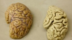 Quiz - Mediterranean Plants May Help Brain Diseases