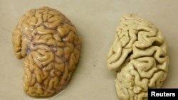 FOne hemisphere of a healthy brain (L) is pictured next to one hemisphere of a brain of a person suffering from Alzheimer disease.