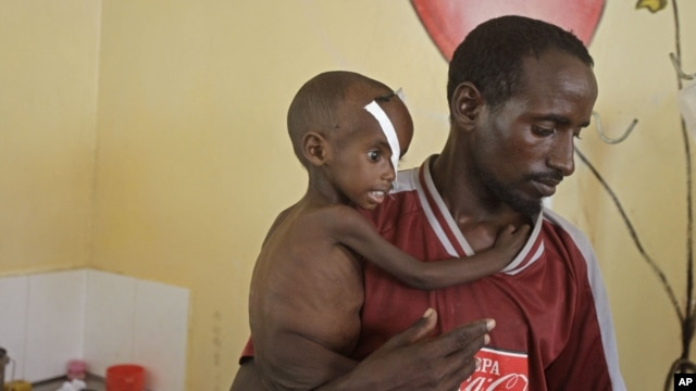 Abdulle Ibrahim, holds his son Adam Ibrahim at the International Rescue Committee, IRC, clinic in the town of Dadaab, Kenya, July 29, 2011.