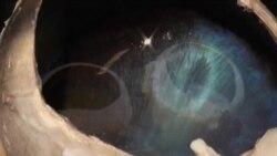 Ojos color de reno