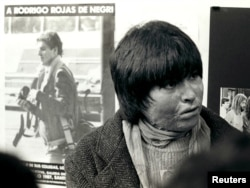 FILE - Carmen Gloria Quintana is seen near her home in Santiago in July of 1987. Quintana, then 18 years old, suffered burns over 65 percent of her body on July 2, 1986. A poster behind her shows photographer Rodrigo Rojas.