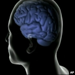 Researcher Owen Carmichael says most people develop vascular disease as they age, which affects blood flow to the brain.