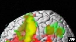 Efektet e dëmtimit traumatik të trurit tek fëmijët ndjehen edhe 10 vjet më vonë