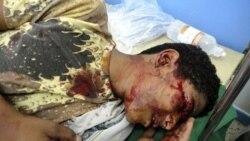 معترض مجروح در یک درمانگاه شهر تعز - ۴ آوریل ۲۰۱۱