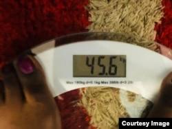 Marlene Gadzirayi lost weight while undergoing chemotherapy and radiotherapy treatments.(Courtesy Image)