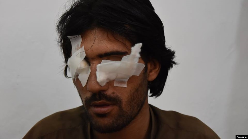Abdul Baqi, 22, thought his family would help him get married. Instead, his father and four brothers accused him of violating Islamic values and removed his eyes to punish him.