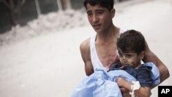 11일 시리아 알레포에서 정부군의 포격으로 다친 어린이.