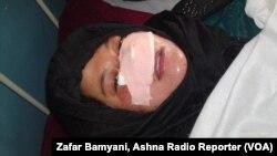 بینی یک زن ۲۱ ساله توسط زن اول شوهرش با چاقو در دایکندی بریده شد.