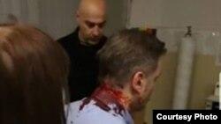 Borko Stefanović napadnut je u Kruševcu (foto: Saveza za Srbiju).