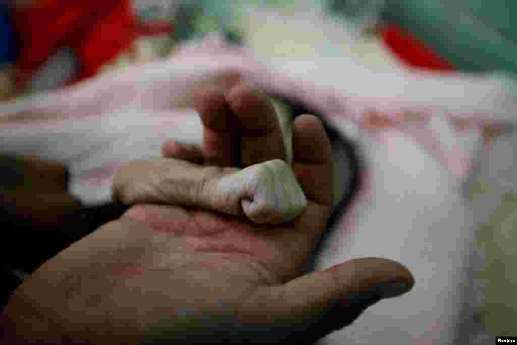 یمن میں چار ماہ کی حجر کے باپ نے اس کا ہاتھ پکڑا ہوا ہے۔ حجر غذائی قلت کے باعث اسپتال میں دم توڑ گئی تھی۔ اس کا جسم ایسے تھا جیسے ہڈیوں پر صرف کھال ہو، اس جسم انتہائی پتلا تھا۔