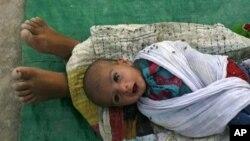 نوزائیدہ بچوں کی زندگی بچانے کے لیے نال کو جراثیم سے محفوظ رکھیں