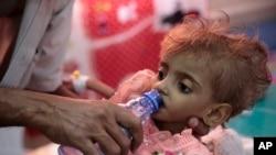 Neuhranjeno dete u bolnici u Jemenu