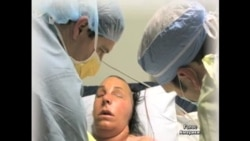 Жінці, яку чоловік облив кислотою пересадили лице