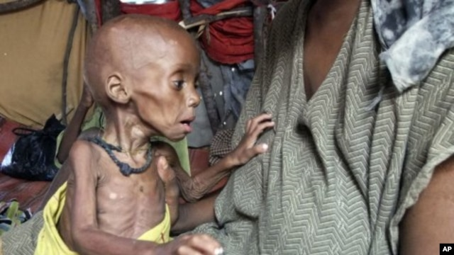 Severely malnourished child from southern Somalia is being held in a makeshift shelter in a refugee camp in Mogadishu, Somalia, September 20, 2011.