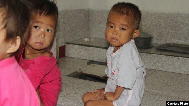 만성적인 식량 부족으로  영양실조 상태인 북한 어린이들. (미션 이스트 제공 자료사진)