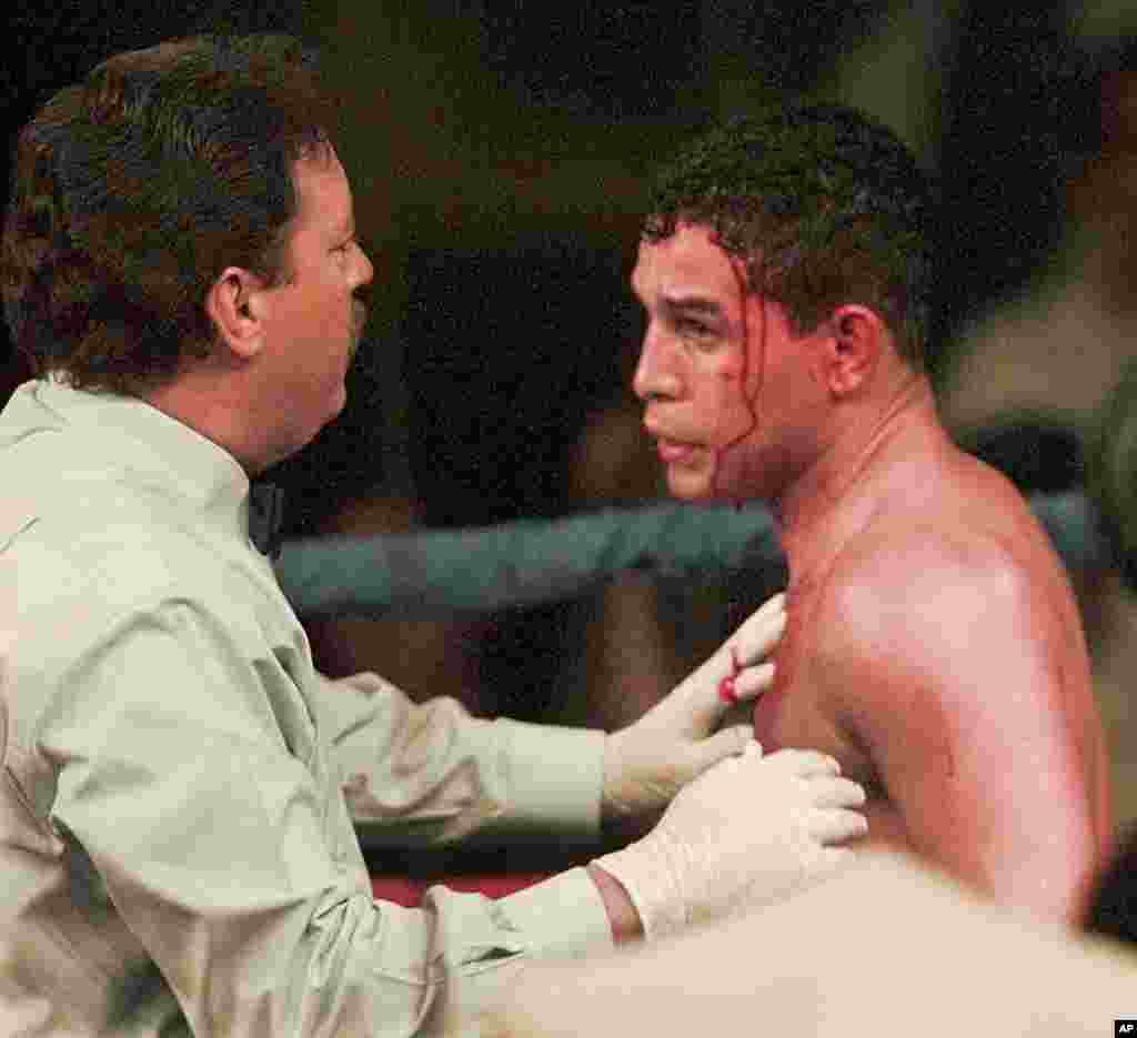 El réferi Jorge Alfonso revisa la cabeza de Camacho que está sangrando durante una lucha en el cuadrilátero con Sal Lopez de Nueva Jersey, en 1996.