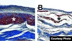 Hidrojel enjeksiyonu tedavisinin ardından domuz kalbinde yeni kalp kasları oluşumu soldaki mikroskobik fotoğrafta görülebiliyor. Sağdakiyse kalp kaslarının tedaviden önceki görünümü. (Karen Christman)