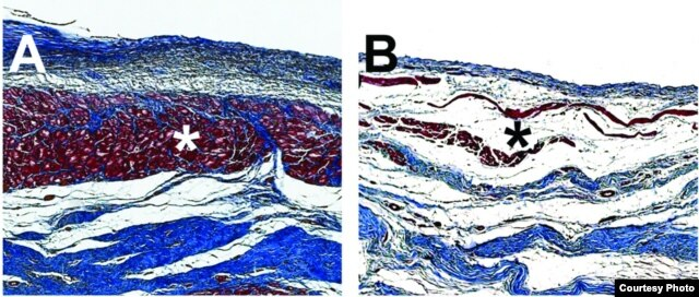 Microscopic images of pig hearts damaged by heart attack show the growth of new heart muscle tissue (shown in red, Figure A) after treatment with an injectable hydrogel compared to a heart left untreated (Figure B, right). Image Credit: Karen Christman, UC San Diego Jacobs School of Engineering.