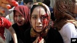 15일 시리아 아자즈에서 정부군의 폭격으로 부상한 여성.