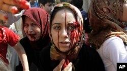 Các phụ nữ Syia bị thương trong vụ không kích đến một bệnh viên dã chiến để được chửa trị