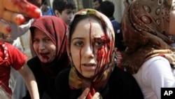 Phụ nữ Syria bị thương đến một bệnh viện dã chiến sau vụ không kích của quân đội chính phủ vào nhà cửa của họ ở thị trấn Azaz trong vùng ngoại ô thành phố Aleppo, ngày 15/8/2012