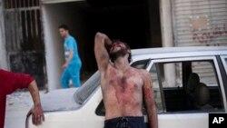 지난해 10월 시리아 알레포의 병원 외곽에서 공습으로 딸을 잃은 남성이 울부짓고 있다.
