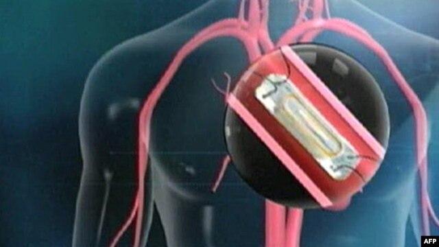 Senzor ugrađen u srčanu pulmonarnu arteriju