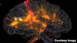 FILE - An image shows activity in a human brain. Scientists have developed a drug capable of sweeping away abnormal protein clumps in the brain which are a hallmark of Alzheimer's disease.