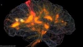 Lidhjet mes trurit tek njeriu dhe miza