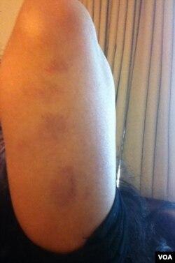 عالیہ کے بازُو پر تشدد کے نشانات