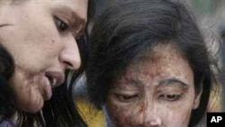 خواتین پر تیزاب سے حملوں کے خلاف قانون سینیٹ سے منظور