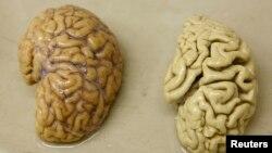 تصویر میں دائیں جانب الزائمرز سے متاثرہ مریض کا دماغ جبکہ بائیں جانب صحتمند انسان کا دماغ دکھایا گیا ہے۔