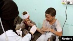 Anak-anak yang terluka dirawat di rumah sakit setelah serangan udara Saudi menghantam sebuah bus berisi puluhan anak di Saada, Yaman utara, Kamis (9/8).