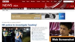 BBC ၏ အဂၤလိပ္ဘာသာ အင္တာနက္ စာမ်က္ႏွာ။ ေအာက္တိုဘာ ၁၅၊ ၂၀၁၄။