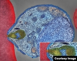 This is a colorized electron micrograph of a malaria-causing Plasmodium parasite, right, attaching to and invading a human red blood cell. The inset shows the attachment point at higher magnification. (Image courtesy of National Institute of Allergy and Infectious Diseases)