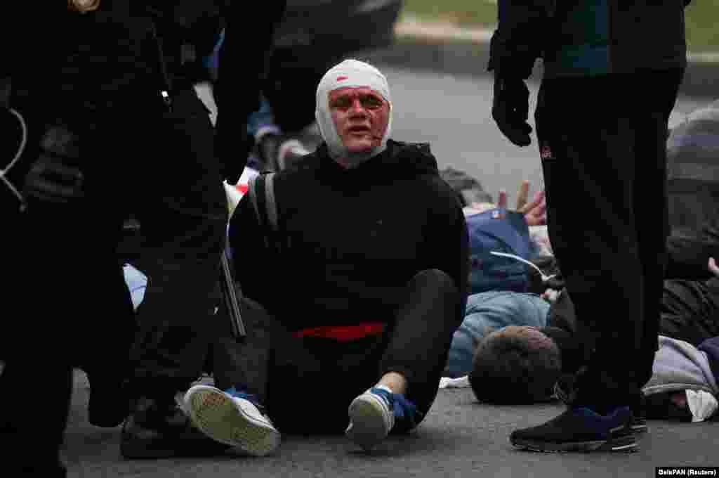 Поранений протестувальник після затримання білоруськими силовиками під час акції протесту 11 жовтня