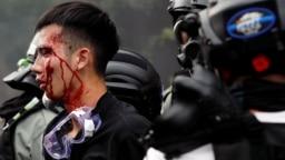 Một sinh viên Hong Kong bị cảnh sát bắt hôm 18/11.